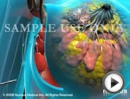 3D Medical Animation - Lumpectomy Mastectomy Breast Cancer Surgery